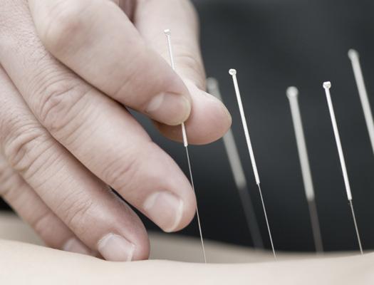 dry-needling-525x400-ol